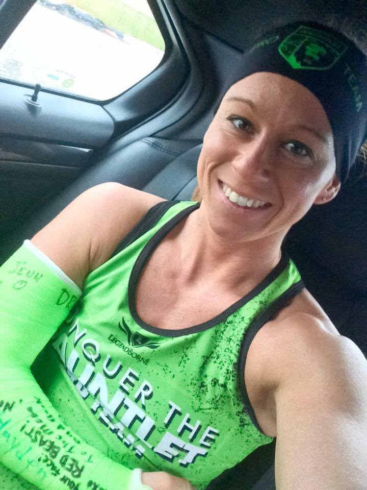 CTG Pro Team Athlete Nikki Call with her arm in a cast.